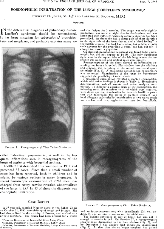 Eosinophilic Infiltration of the Lungs (Loeffler's Syndrome) | NEJM