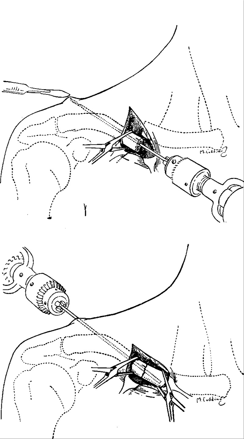 the management of simple fracture of the clavicle in adults nejm External Fixator Jaw open reduction and internal fixation of fracture of the clavicle