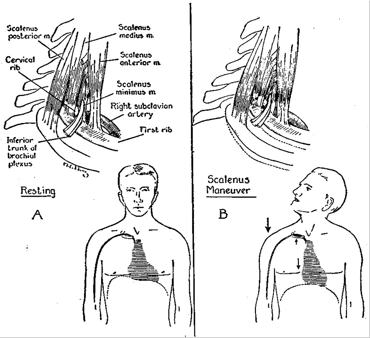 Auscultation in the Diagnosis of Compression of the Subclavian ...
