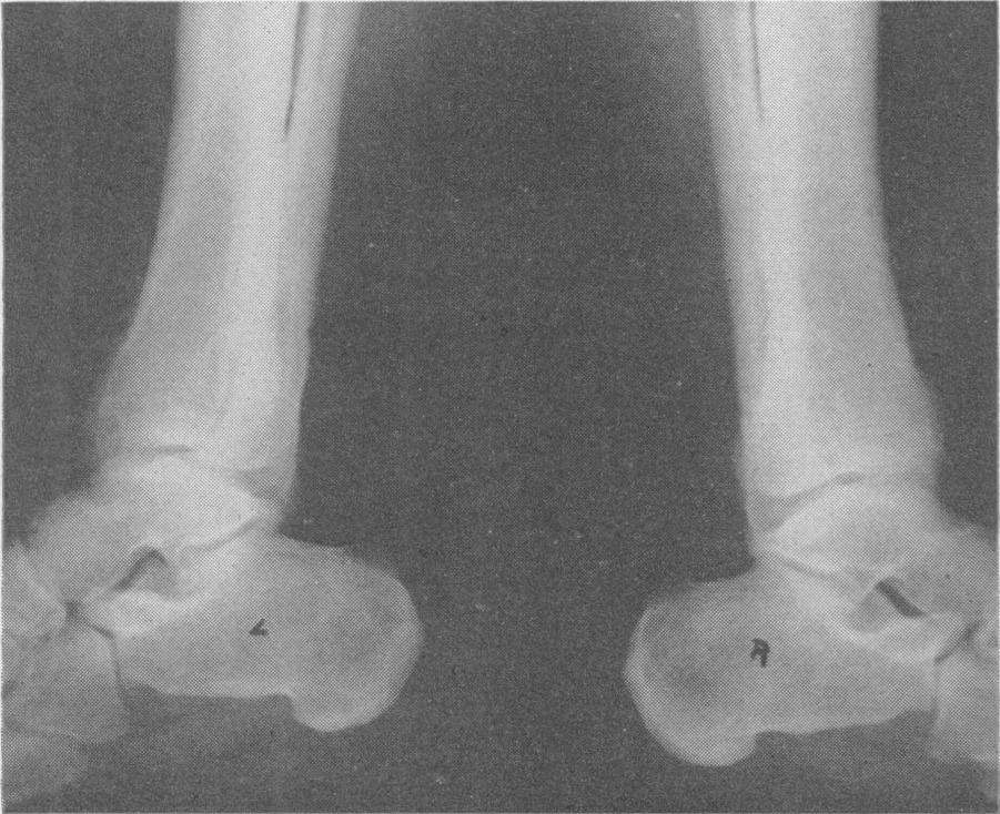 Chronic Idiopathic Hypertrophic Osteoarthropathy — Report of a Case ...
