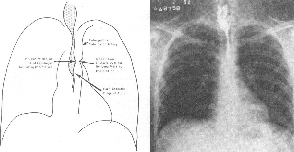Coarctation Of The Thoracic Aorta Signs Demonstrable By