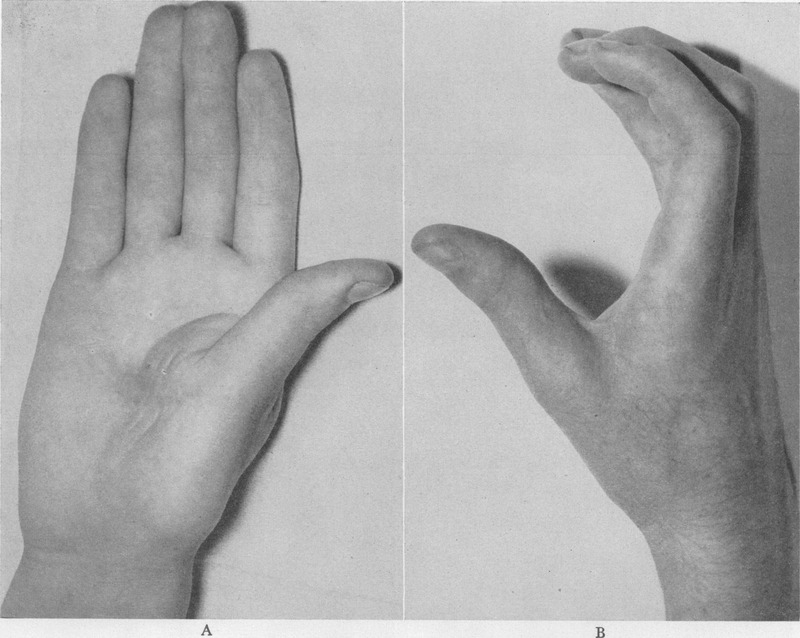 Adduction Contracture of the Thumb | NEJM