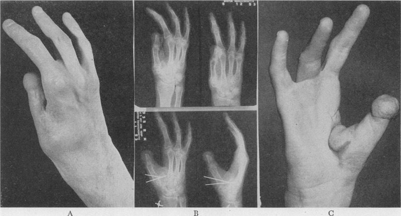 Adduction Contracture of the Thumb   NEJM
