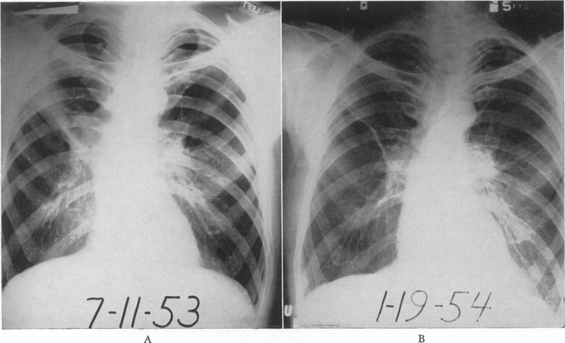Pneumonia chest x-ray consolidating student loans