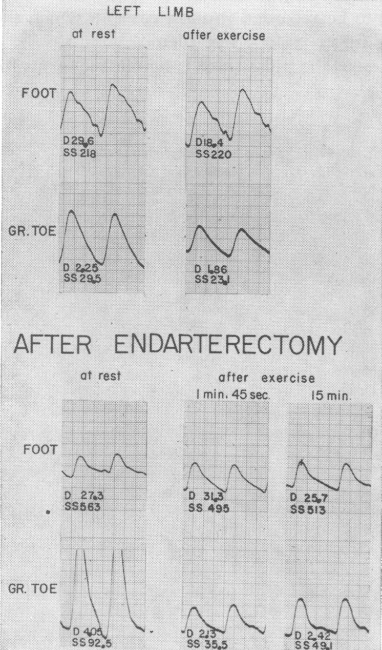 Effect of Exercise on the Peripheral Pulses | NEJM
