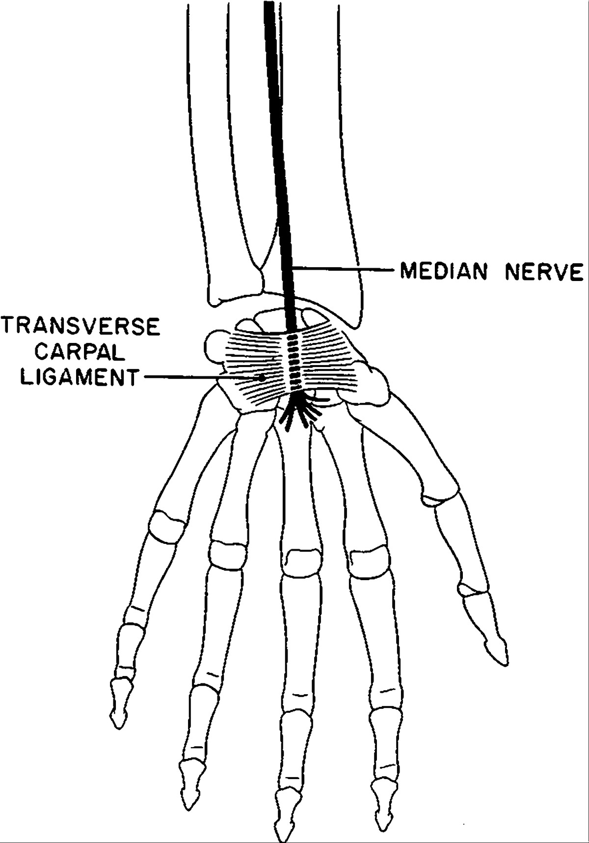 Peripheral Entrapment Neuropathies Of The Upper Extremity Nejm