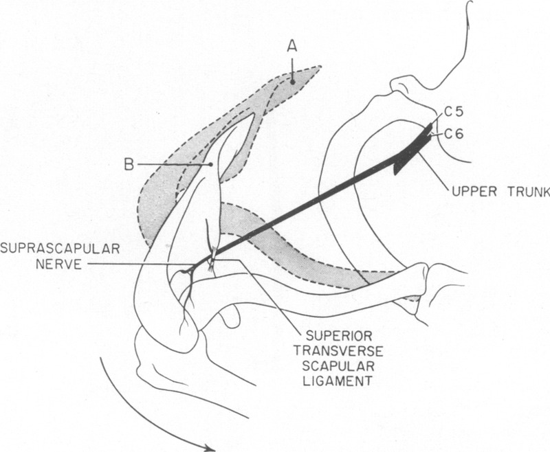 Peripheral Entrapment Neuropathies Of The Upper Extremity