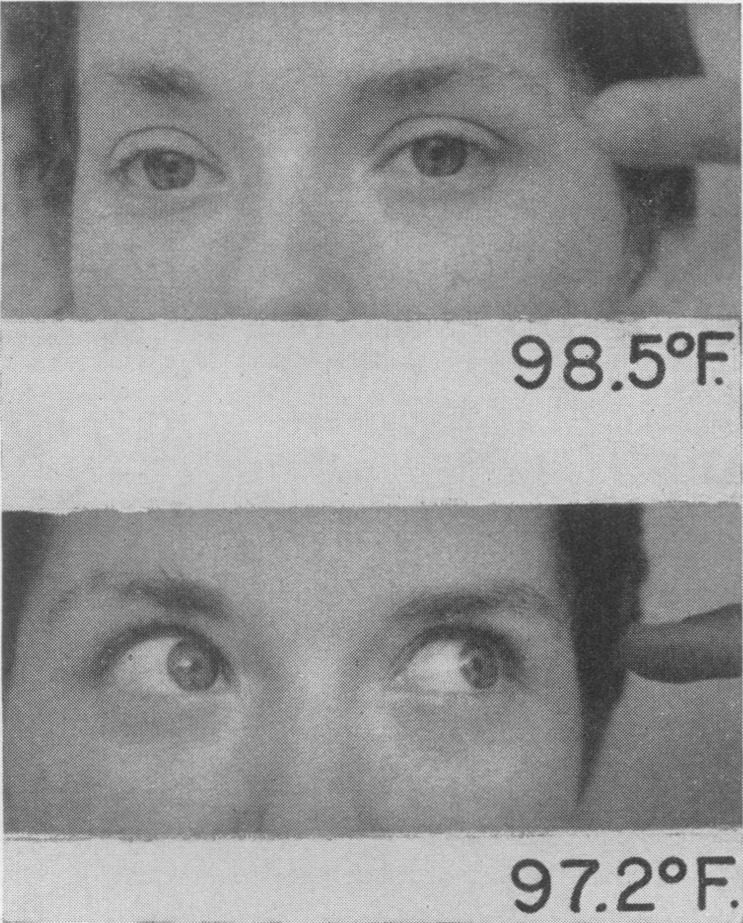 restoration of conjugate lateral gaze to the left after 1 3�f  reduction in body  temperature by exposure to cold air in case 1