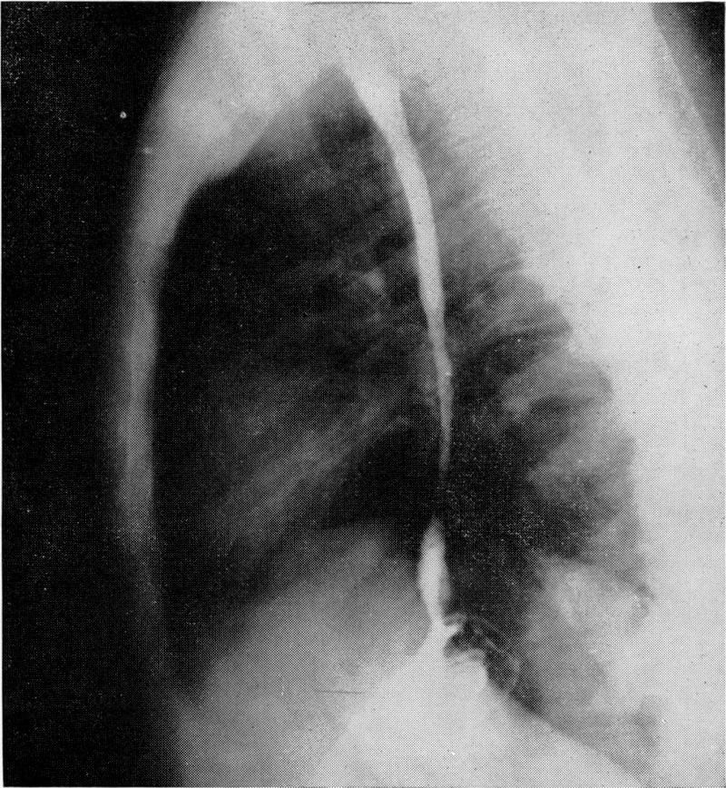 Esophageal and Antral Strictures Due to Ingestion of