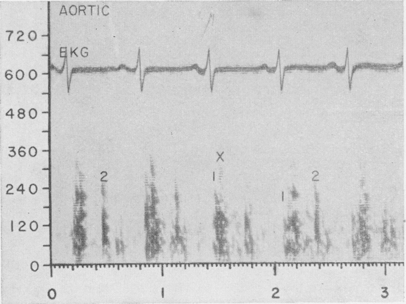 Bilateral Diaphragmatic Contraction Synchronous with Cardiac