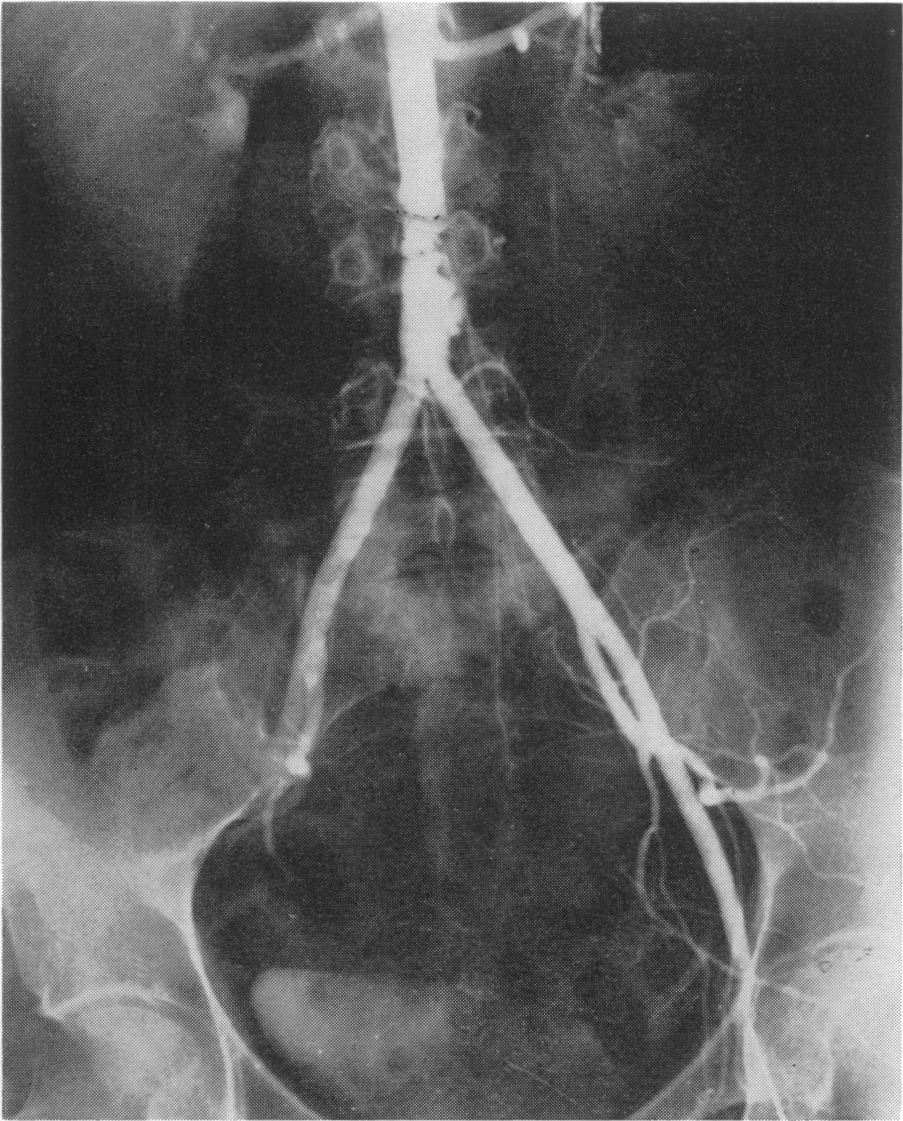 Direct retrograde femoral aortography nejm for Mural thrombus aorta