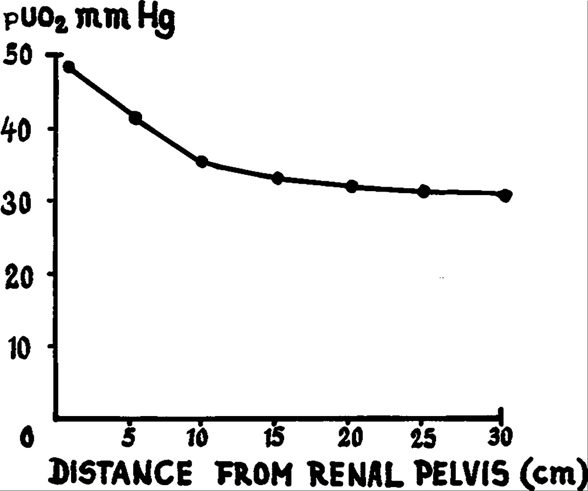 Oxygen tension of the urine and renal structures preliminary progressive fall in puo2 as the ureteral catheter is withdrawn from the renal pelvis average of 5 patients pooptronica