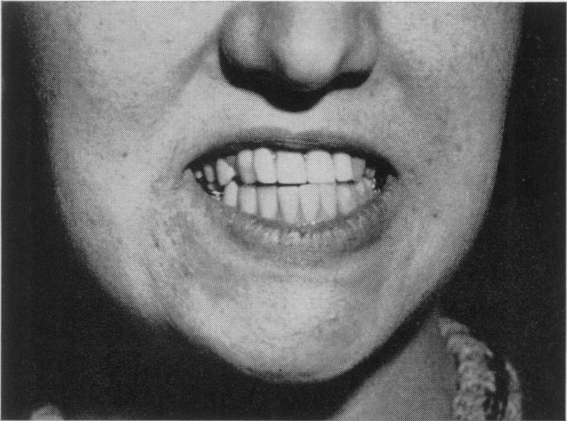 Ameloblastoma of the Jaw — A Clinical Study | NEJM