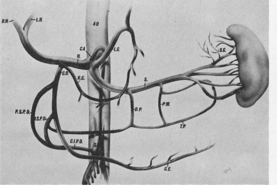 Pancreatic Angiography With Application Of Subselective Angiography
