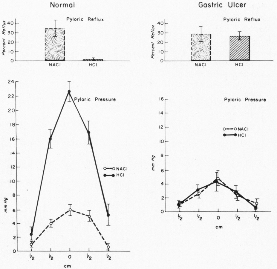 Pyloric-Sphincter Dysfunction in Patients with Gastric Ulcer | NEJM