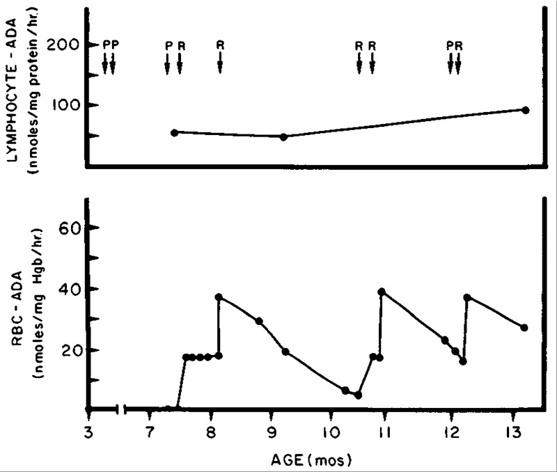 enzyme replacement therapy for adenosine deaminase deficiency and