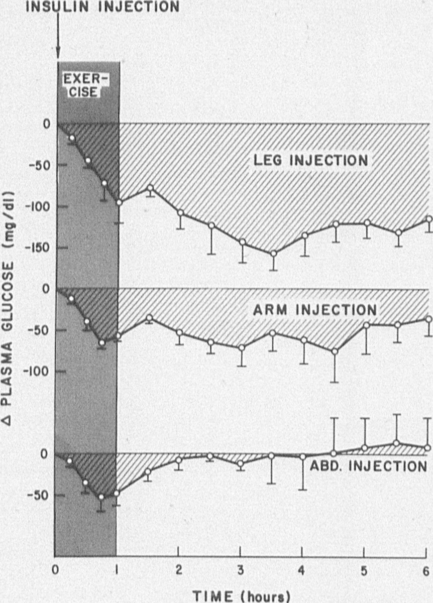 Effects of leg exercise on insulin absorption in diabetic patients influence of injection site on the plasma glucose response to leg exercise pooptronica Choice Image