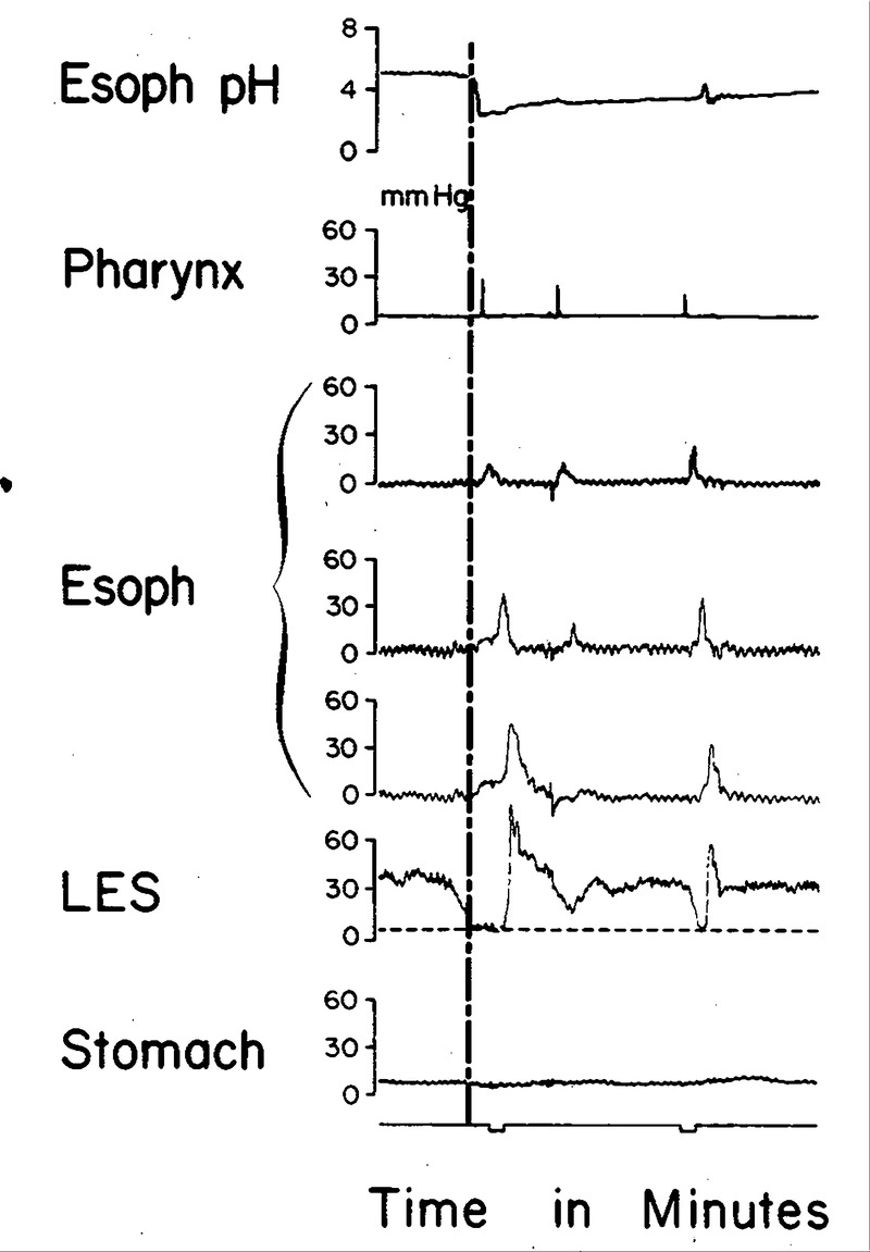 gastroesophageal reflux associated with a transient lower esophageal  sphincter (les) relaxation in a patient with reflux esophagitis