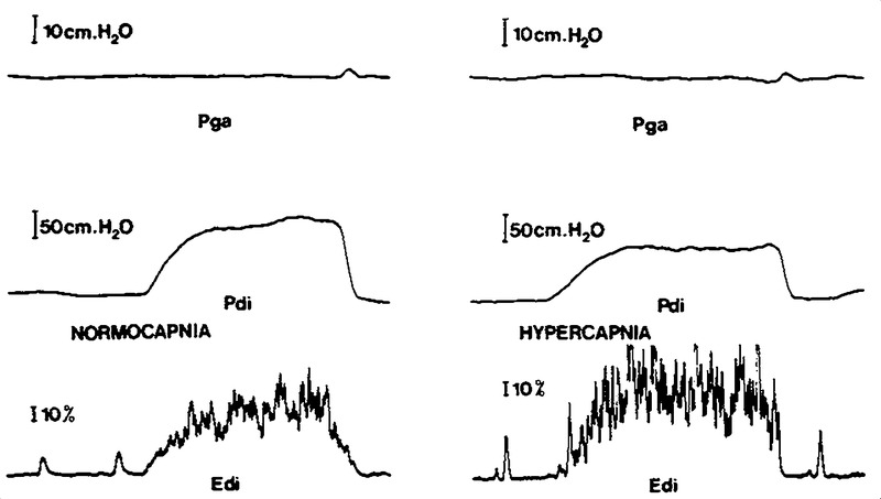Effect of Carbon Dioxide on Diaphragmatic Function in Human