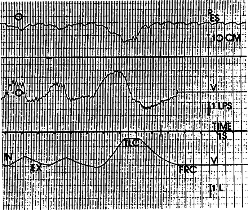 Involvement of Upper-Airway Muscles in Extrapyramidal