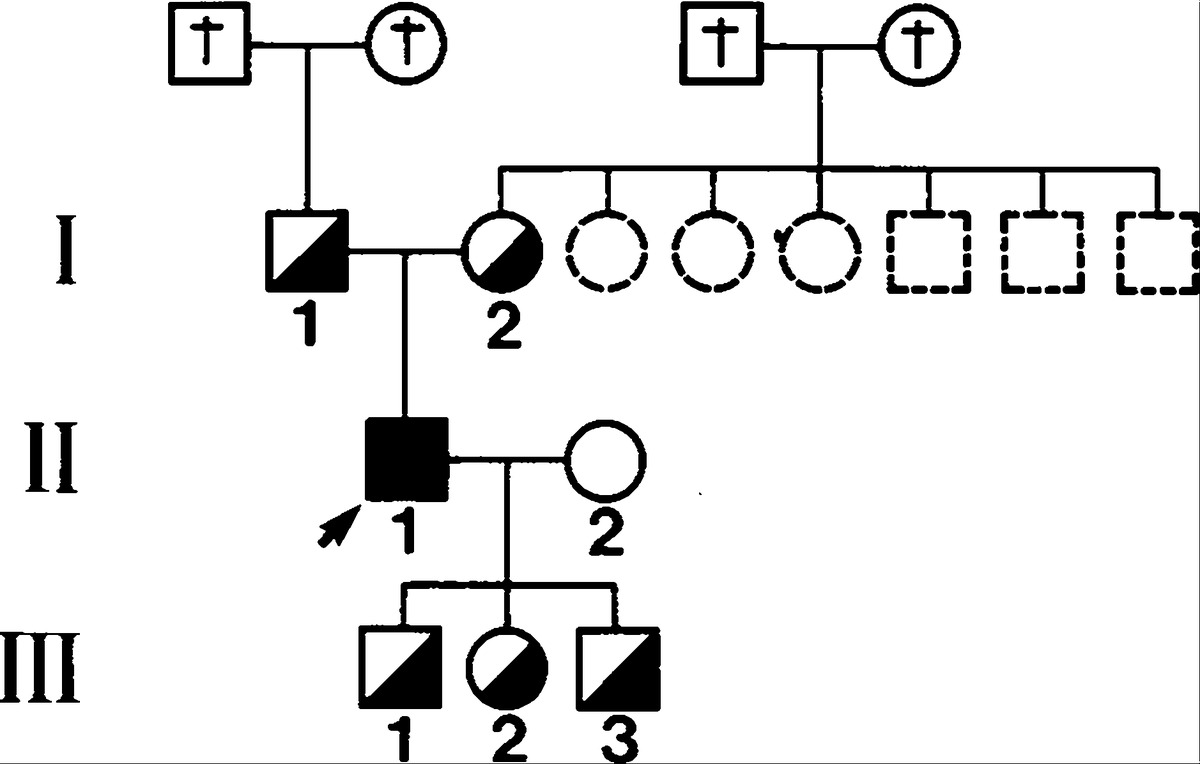 Hepatoerythropoietic porphyria clinical biochemical and figure 1 pedigree of a family with hepatoerythropoietic porphyria showing the inheritance of the uroporphyrinogen decarboxylase defect biocorpaavc Choice Image