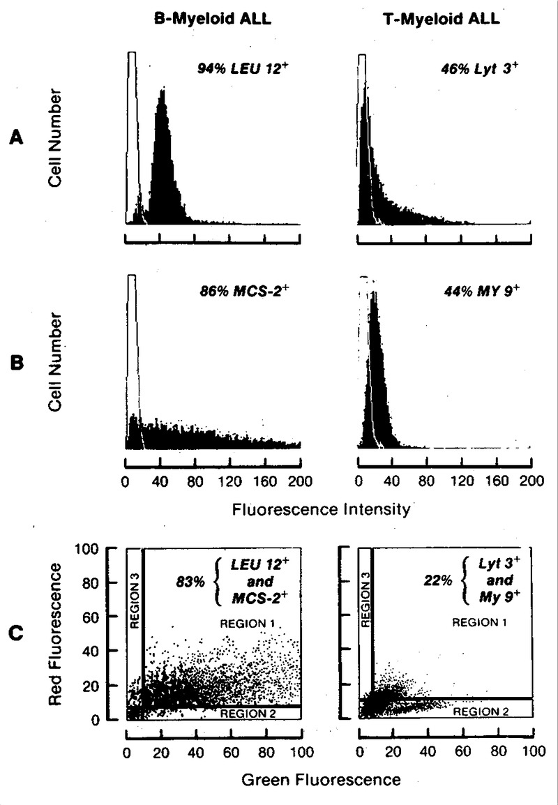 Clinical Importance of Myeloid Antigen Expression in Adult