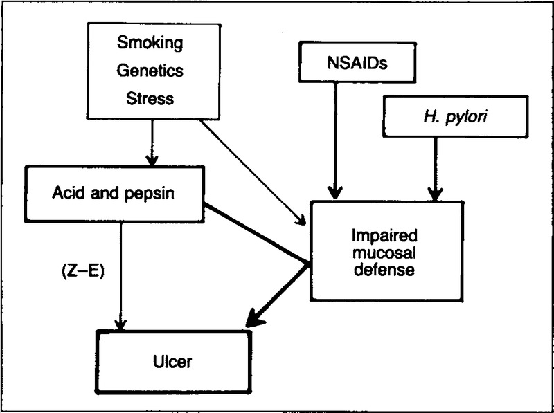 a model of the pathogenesis of peptic ulcer