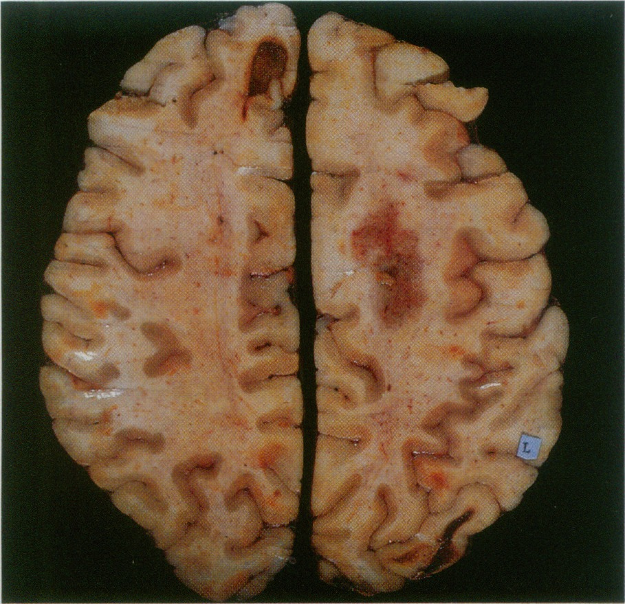 Case 26-1990 — A 68-Year-Old Man with a Right Hemiparesis, Abulia ...