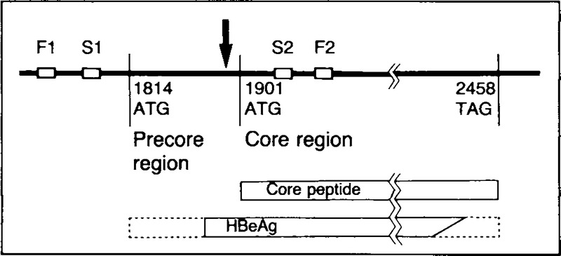 Mutations in the Precore Region of Hepatitis B Virus DNA in
