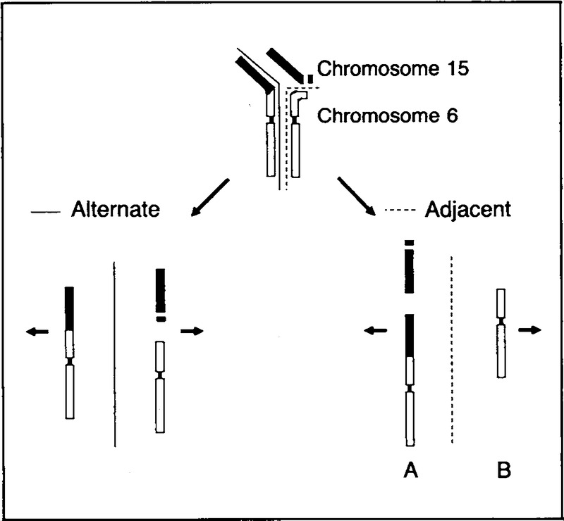 Praderwilli Syndrome And Angelman Syndrome In Cousins From A Family