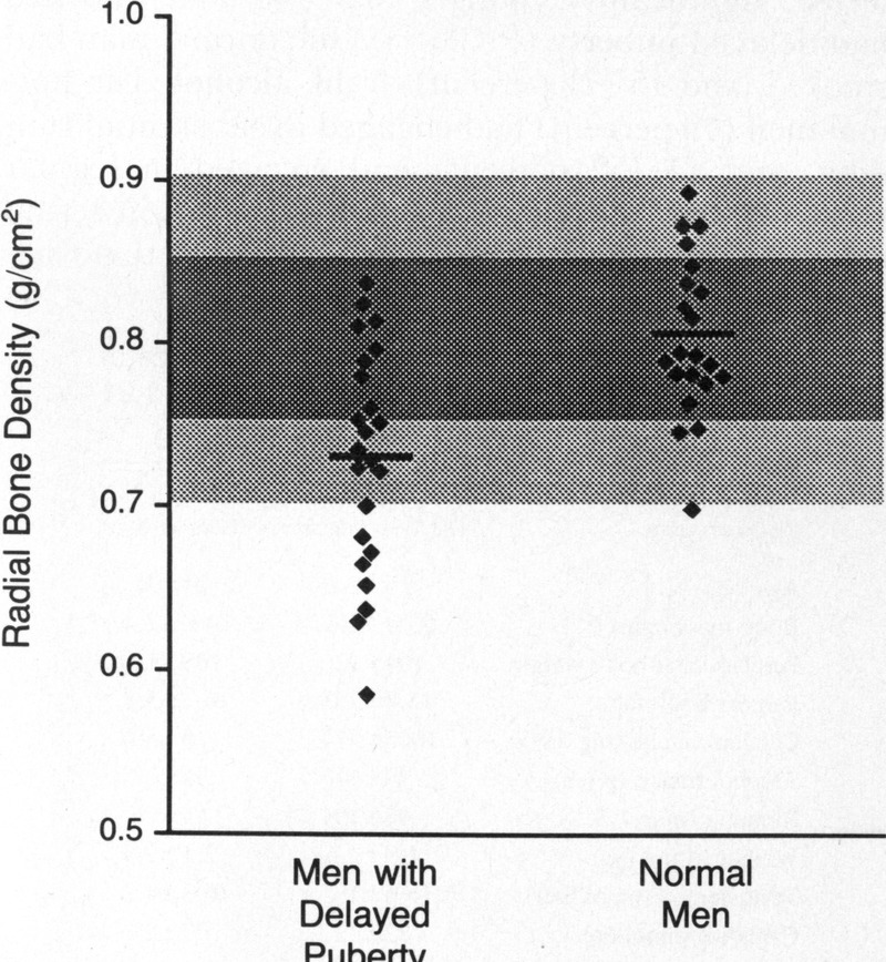 Osteopenia in Men with a History of Delayed Puberty  743207a0a30