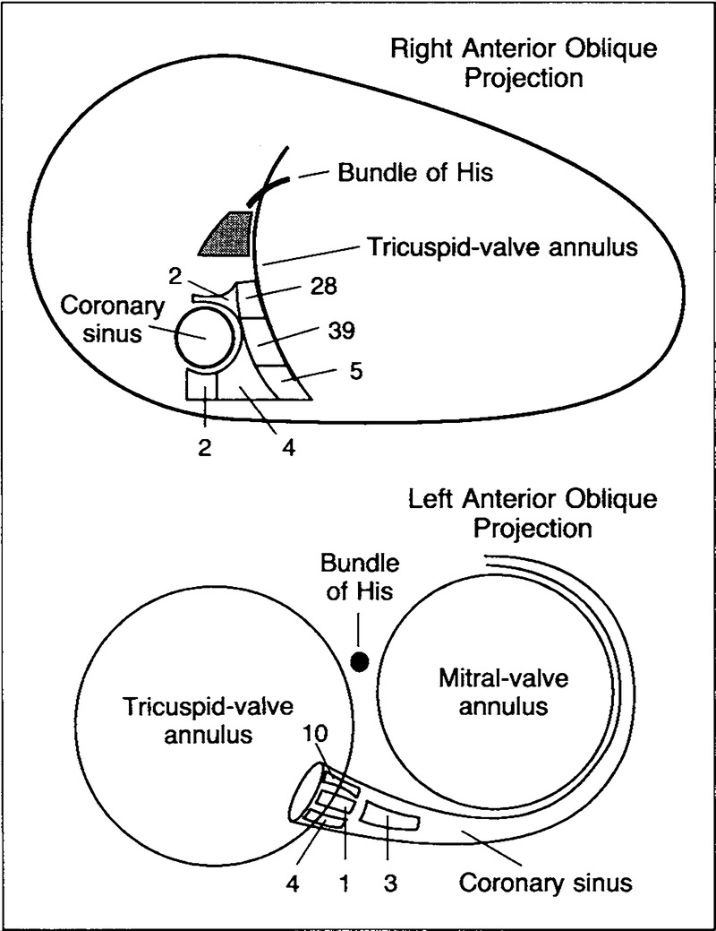 Treatment Of Supraventricular Tachycardia Due To Atrioventricular Difference Between Series And Parallel Circuits Youtube Schematic Representation The Septum As Viewed Fluoroscopically In Right Left Anterior Oblique Projections Showing 98 Sites Successful