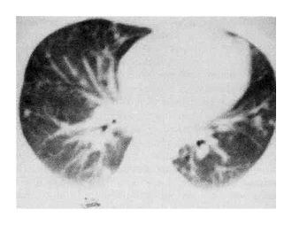 Case 23-1993 — A 30-Year-Old Man with a Dry Cough, Dyspnea