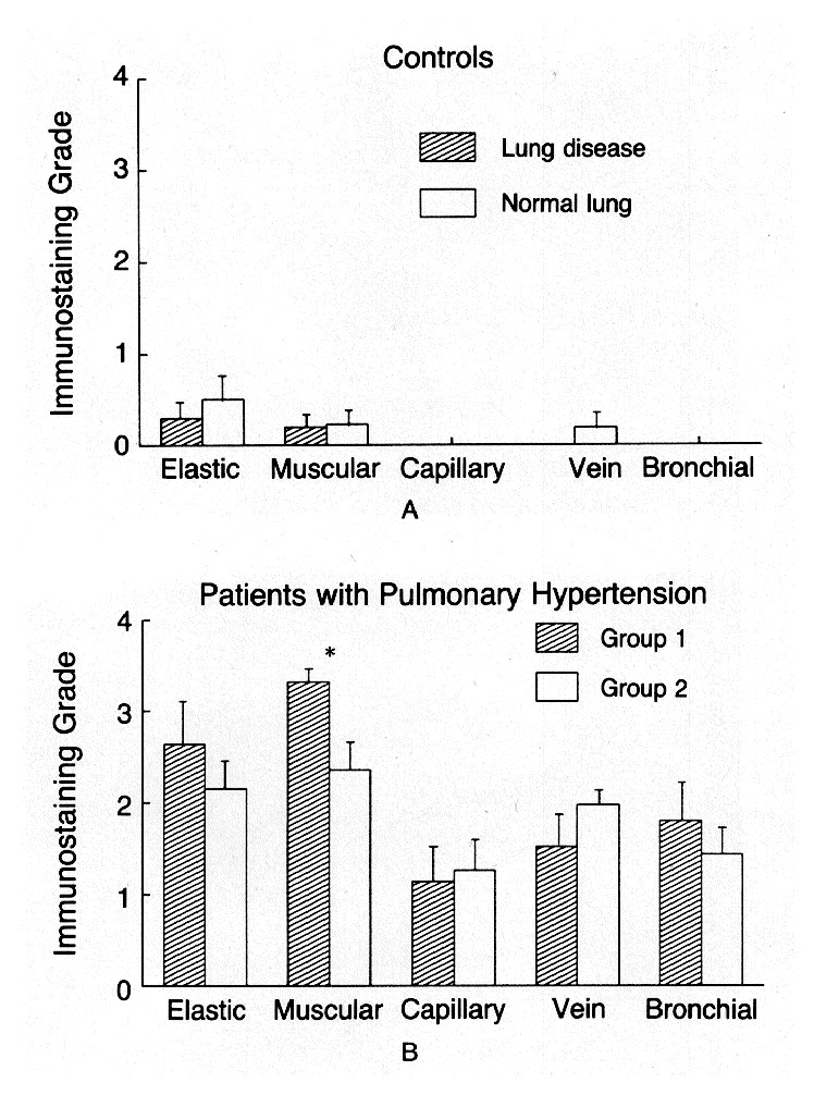 Expression of endothelin 1 in the lungs of patients with pulmonary mean se level of endothelin 1 like immunoreactivity in vascular endothelium of lung tissue from two groups of controls panel a and two groups of ccuart Choice Image