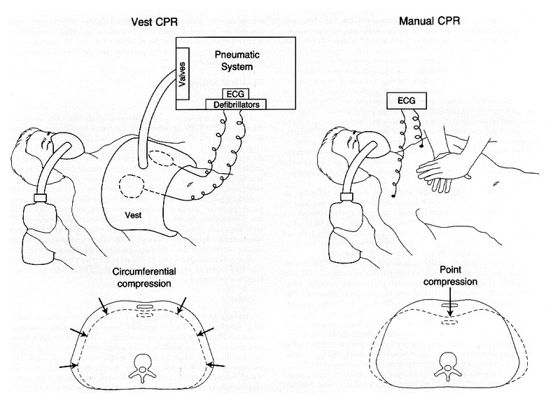 a comparison of the thoracic-vest system for cardiopulmonary resuscitation  (vest cpr) with standard manual cpr