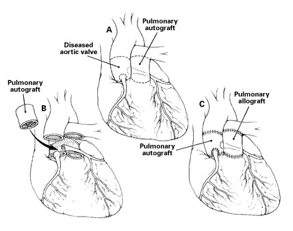 Replacement Of The Aortic Root With A Pulmonary Autograft In