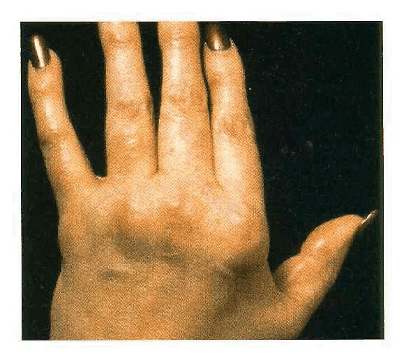 Case 44,1994 \u2014 A 38,Year,Old Women with Chronic Rheumatoid
