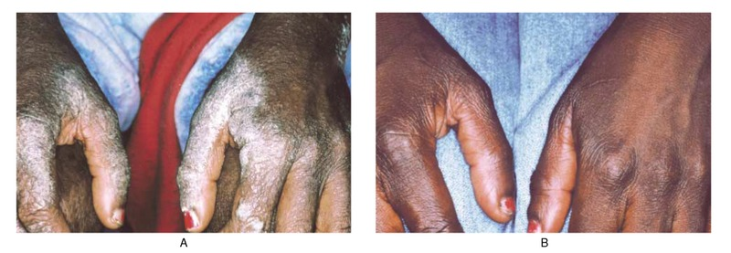 the hands of a patient with aids before and after treatment for scabies