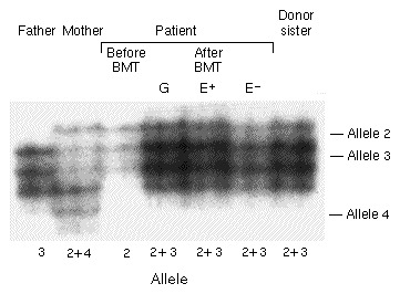 Correction of X-Linked Hyper-IgM Syndrome by Allogeneic Bone