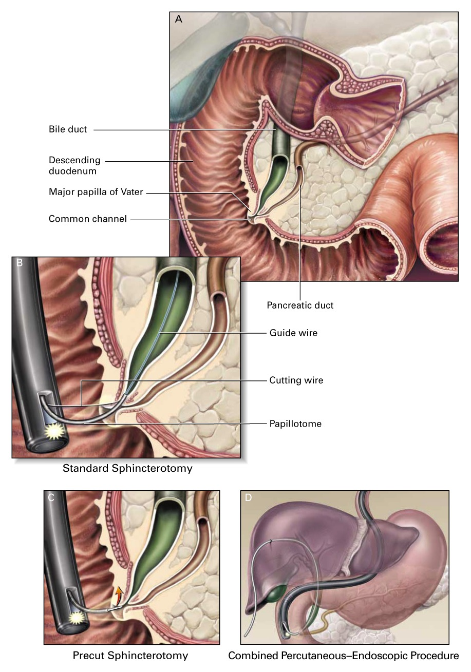 Complications Of Endoscopic Biliary Sphincterotomy Nejm