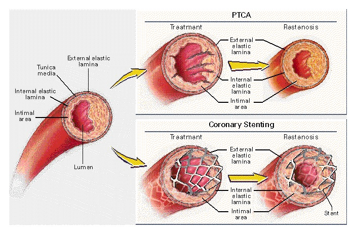 Advances in Coronary Angioplasty NEJM