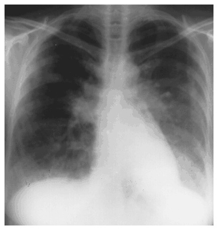 Case 24-1996 — A 54-Year-Old Woman with Infiltrative Lung