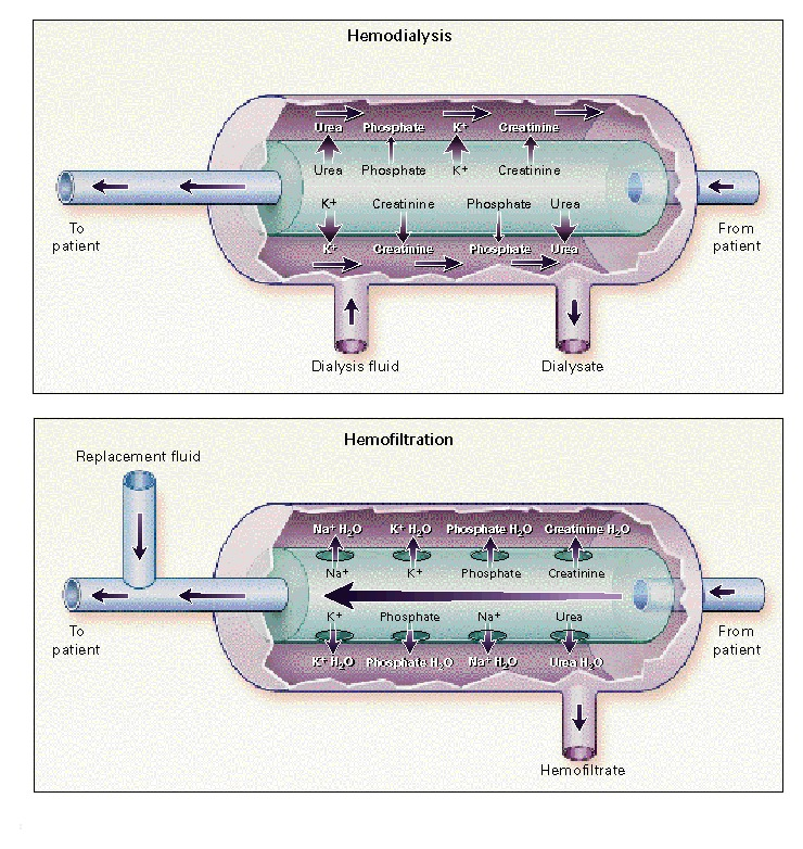 Continuous Hemofiltration in the Treatment of Acute Renal