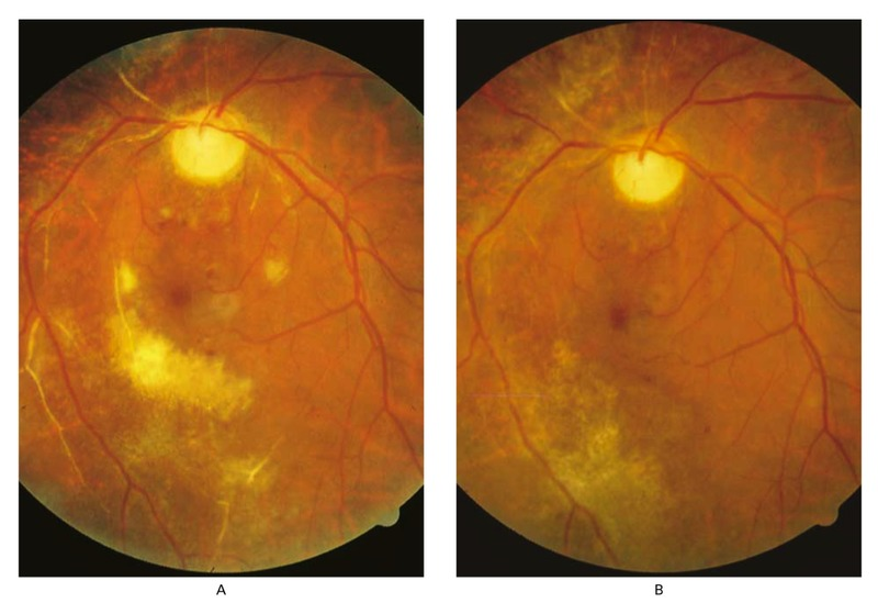 Treatment of Cytomegalovirus Retinitis in Patients with the