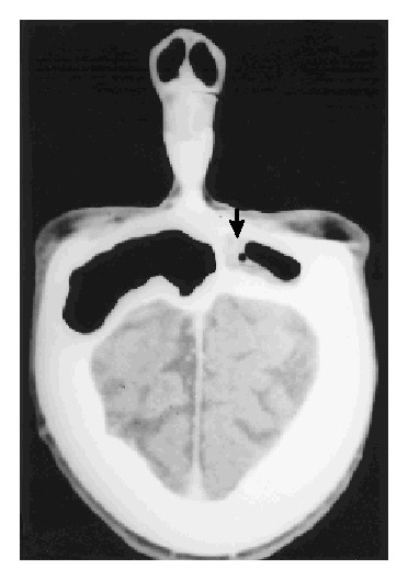 case 35 1997 a 65 year old woman with a dry cough and pulmonary CT Scan with Contrast ct scan of the head obtained two weeks before admission showing mucosal thickening in the right frontal sinus arrow