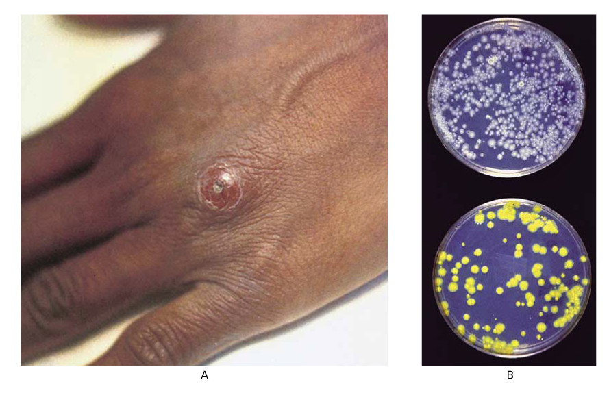 mycobacterial infection