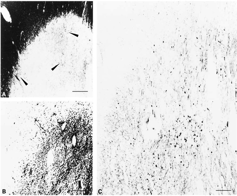Axonal Transection in the Lesions of Multiple Sclerosis | NEJM