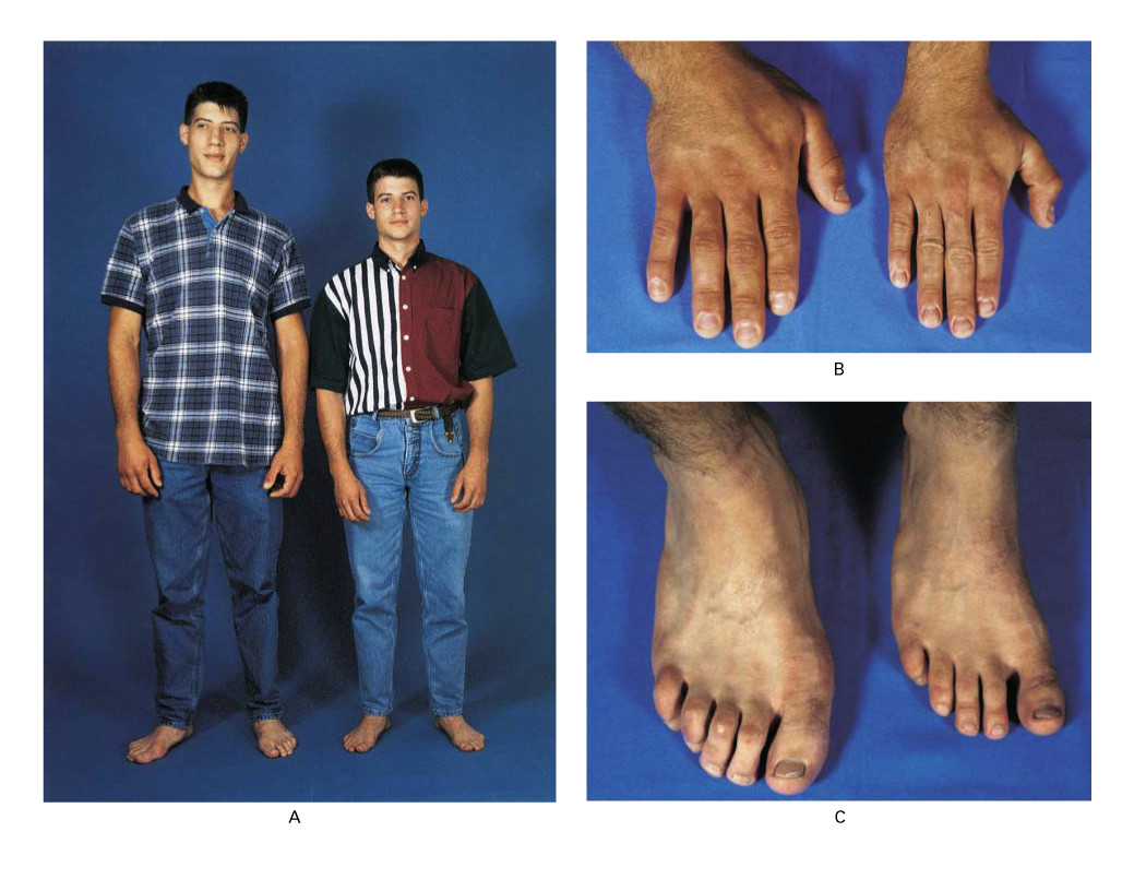 Acromegaly/gigantism: hands in an identical twin pair.