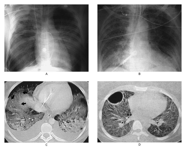 The Acute Respiratory Distress Syndrome | NEJM
