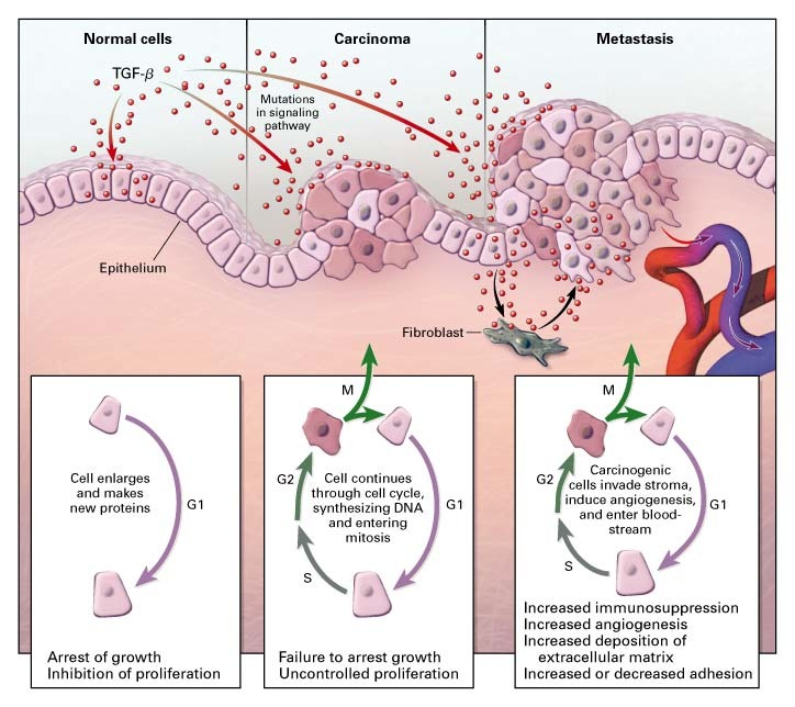 Role of Transforming Growth Factor β in Human Disease | NEJM